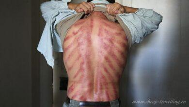 Фото Тайский массаж польза и вред: противопоказания